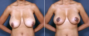 Dr. Brahme Breast Lift 4