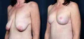 Dr. Saltz Breast Lift 10