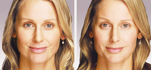 juvederm before after photos san diego