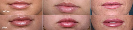 lip injections juvederm san diego