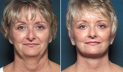 San Diego facelift before and after photo
