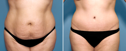 San Diego tummy tuck before and after