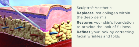 how does sculptra work
