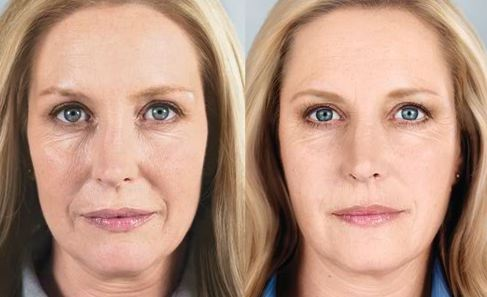 sculptra before and after san diego