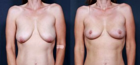 Dr. Saltz Breast Lift 18