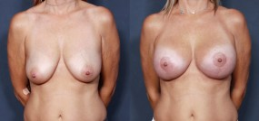 Dr. Brahme Breast Lift 12