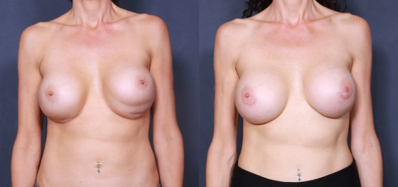 Dr. Saltz Breast Augmentation Revision Patient 1