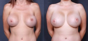 Dr. Brahme Breast Augmentation Revision 1