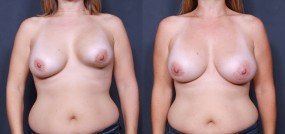 Dr. Saltz Breast Augmentation Revision 2