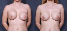 Dr. Brahme Breast Augmentation Revision 2