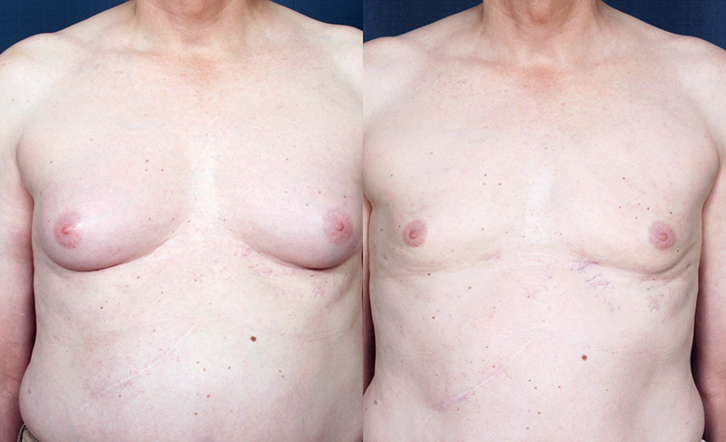 Male breast reduction san diego