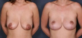 Dr. Roark Breast Lift
