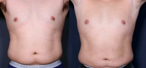 Dr. Brahme Male Liposuction 242