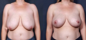 Dr. Saltz Breast Reduction 195