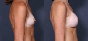 Dr. Saltz Nipple Reduction