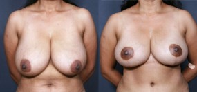 Dr. Brahme Breast Reduction 218