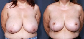 Dr. Brahme Breast Reduction 878