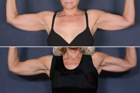 Dr. Roark Upper Arm Lift