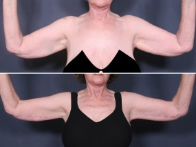 Dr. Brahme Upper Arm Lift