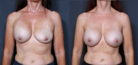 Dr. Saltz Breast Augmentation Revision