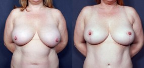 Dr. Brahme Breast Reduction