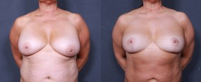 Dr. Roark Breast Reduction