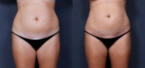 Dr. Saltz Liposuction