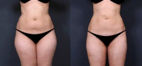 Dr. Saltz Liposuction 9