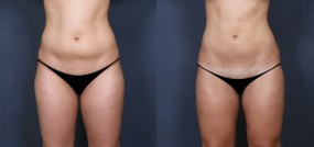 Dr. Saltz Liposuction 10