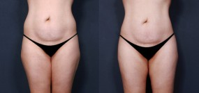 Dr. Saltz Liposuction 8
