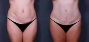 Dr. Brahme Tummy Tuck