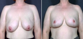 Dr. Saltz Breast Reduction