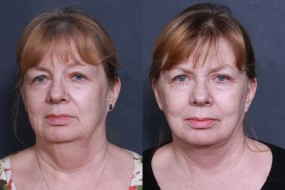 Dr. Roark Facelift and Neck Lift