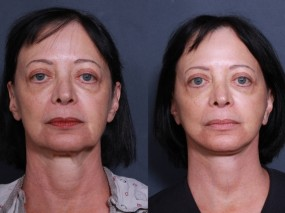 Dr. Roark Face and Neck lift