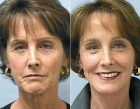 Dr. Smoot Brow Lift