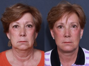 Dr. Brahme Facelift & Neck Lift