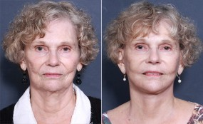 Dr Smoot Facelift & Neck Lift