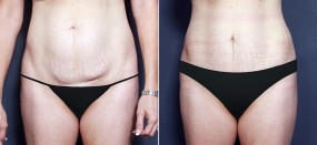 Dr. Smoot Tummy Tuck