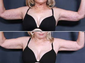 Dr. Smoot Upper Arm Lift