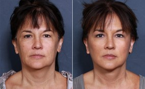Dr. Smoot Neck Lift