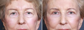 Dr. Smoot Eyelid lift