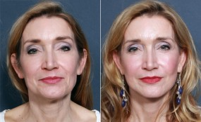 Dr. Smoot Mini Facelift & Neck Lift