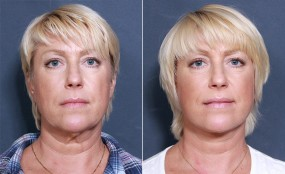Dr. Roark Facelift & Neck Lift