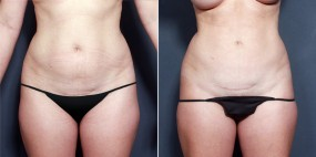 Dr. Brahme Liposuction