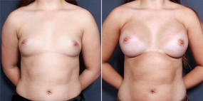 Dr Smoot Breast Augmentation