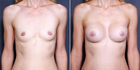 Dr. Saltz Breast Augmentation