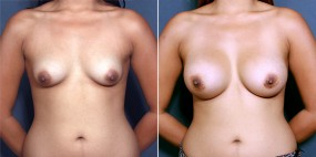 Dr. Roark Breast Augmentation