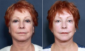 Dr. Roark Mini Facelift & Neck Lift