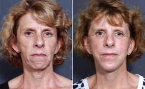 Dr. Smoot Facelift, Neck Lift, & Chin Enlargement