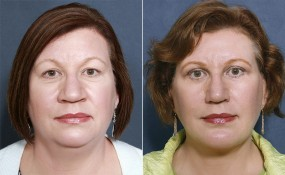 Dr Brahme Facelift, Eyelid Lift, Neck Lift, Chin Enlargment, Rhinoplasty, Fat Transfer